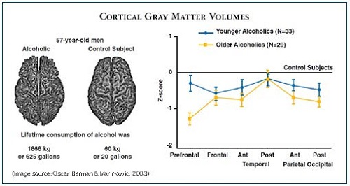 Chart of Cortical Gray Matter Volumes as Affected by Alcohol Use